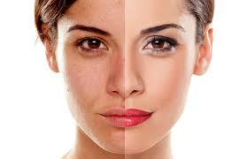 A before and after image of a woman who used microdermabrasion to lighten her facial skin tone.
