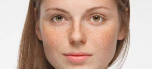 An image of a young woman with dark facial spots otherwise known as hyperpigmentation.