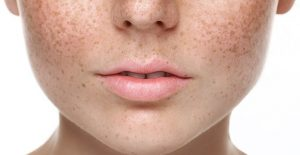 An image of someone with melasma which causes dark skin spots.